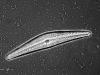 10-cymbella-spera-contrasto-di-fase-convenzionale